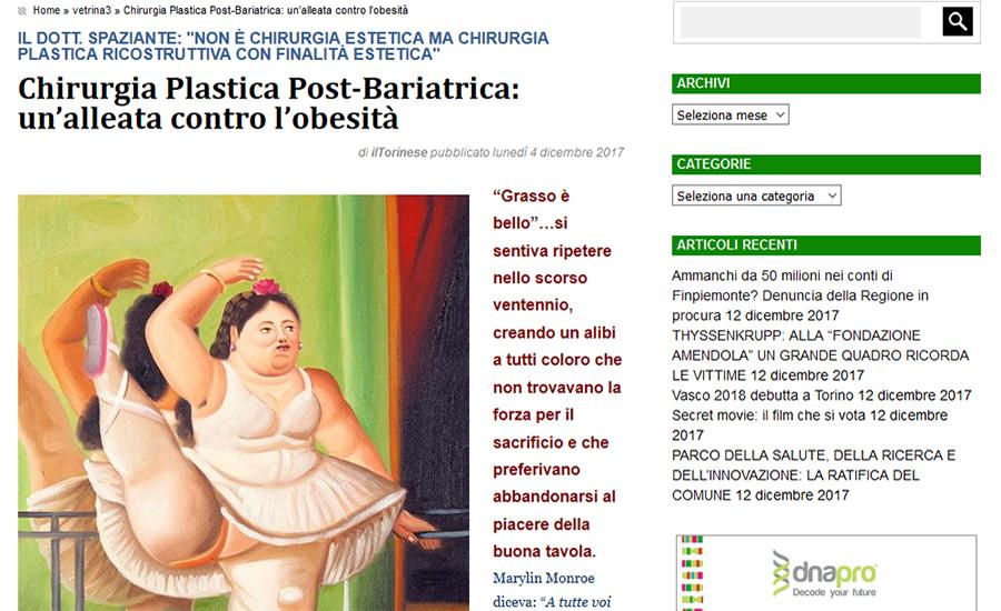 Chirurgia Plastica Post-Bariatrica: un' alleata contro l'obesità