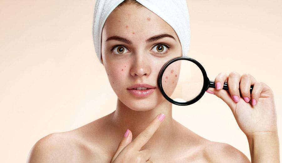 Acne ed esiti di acne: come intervenire per migliorarne l'impatto estetico