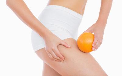 Problemi di cellulite… ecco come affrontarli!